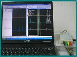 动物心电图解析系统